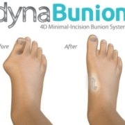 DynaBunion 4D Minimal Incision Bunion Correction